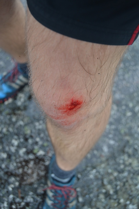 Injury on The Squamish Chief Hike